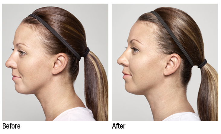 restylane silk before and after  (1)