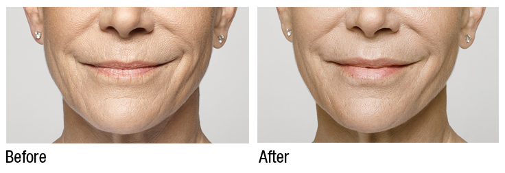 restylane silk before and after  (2)