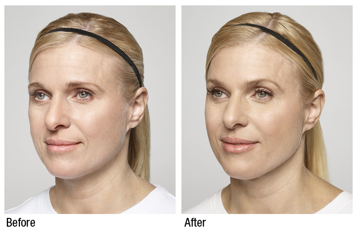 restylane silk before and after  (3)