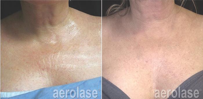 Aerolase<sup>®</sup> Laser | SRS Dermatology - Suzanne