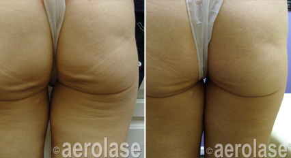 skin rejuvenation 3 - Pair